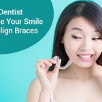 How Your Dentist Can Change Your Smile with Invisalign Braces